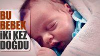 Bu bebek iki kez doğdu!