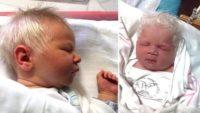 Bebek Bembeyaz Saçlarla Dünyaya Geldi – Doktor Gerçeği Açıklayınca Aile Şok Oldu