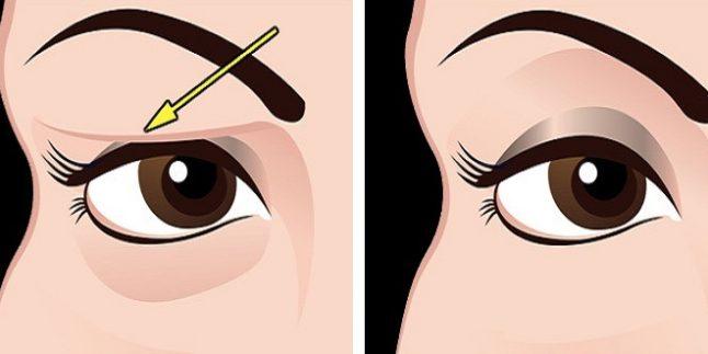 Sarkmış Göz Kapakları İçin Kas Çalıştırma Egzersizi